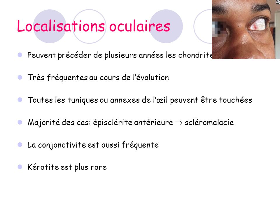 Localisations oculaires