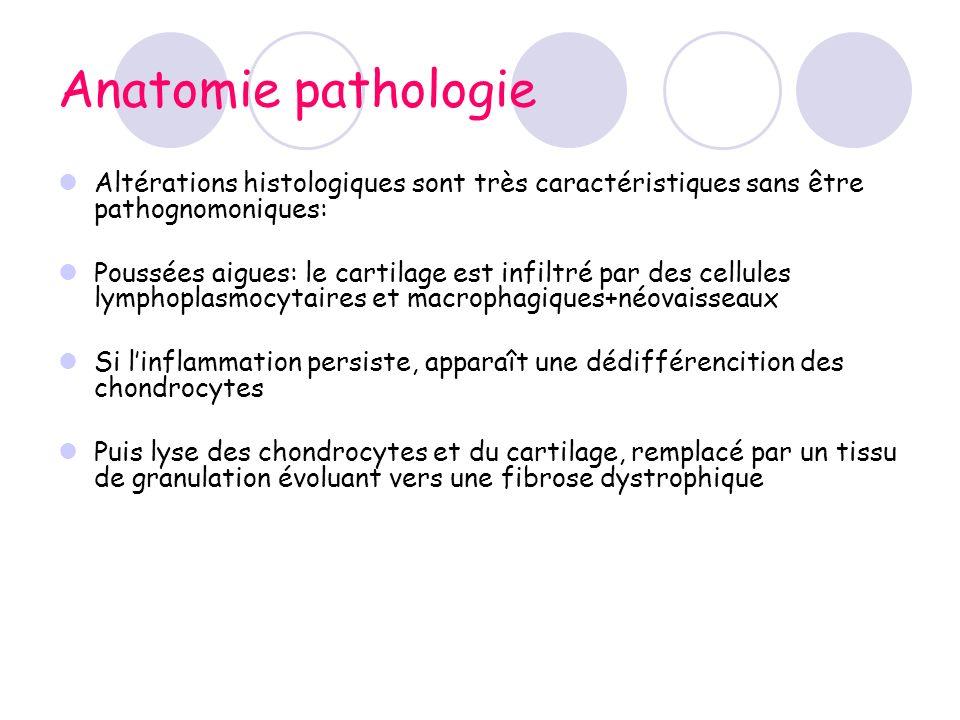 Anatomie pathologie Altérations histologiques sont très caractéristiques sans être pathognomoniques: