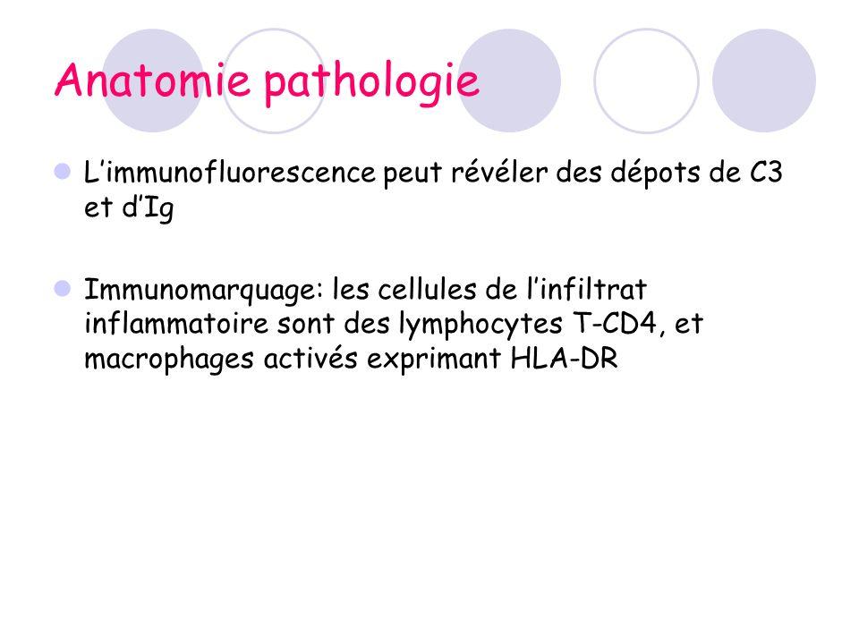Anatomie pathologie L'immunofluorescence peut révéler des dépots de C3 et d'Ig.