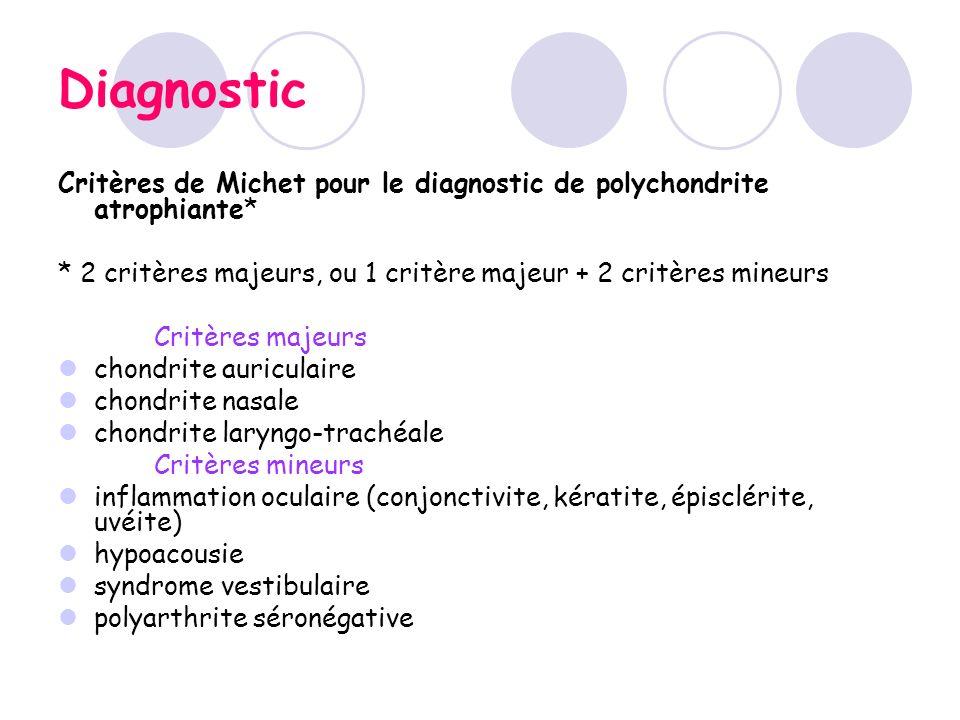DiagnosticCritères de Michet pour le diagnostic de polychondrite atrophiante* * 2 critères majeurs, ou 1 critère majeur + 2 critères mineurs.