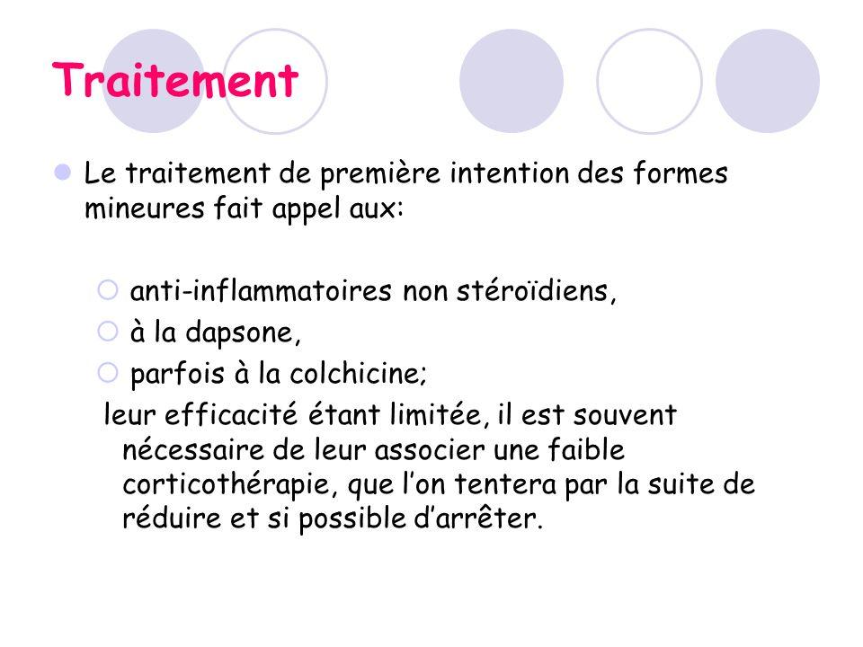 Traitement Le traitement de première intention des formes mineures fait appel aux: anti-inflammatoires non stéroïdiens,