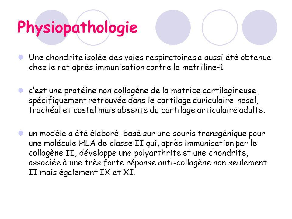 Physiopathologie Une chondrite isolée des voies respiratoires a aussi été obtenue chez le rat après immunisation contre la matriline-1.