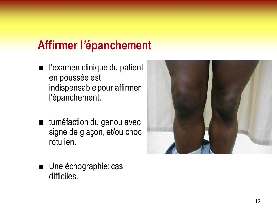 Affirmer l'épanchement