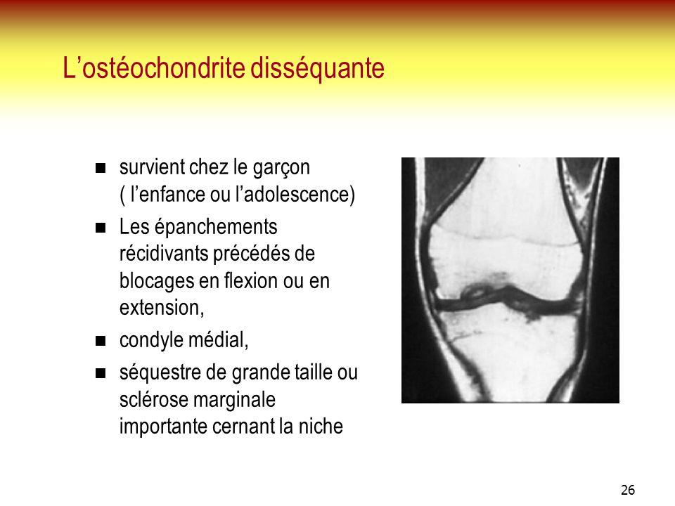 L'ostéochondrite disséquante