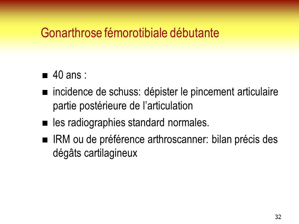 Gonarthrose fémorotibiale débutante