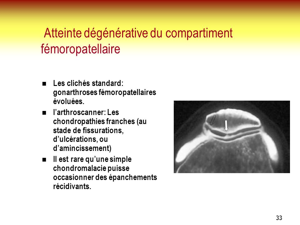 Atteinte dégénérative du compartiment fémoropatellaire