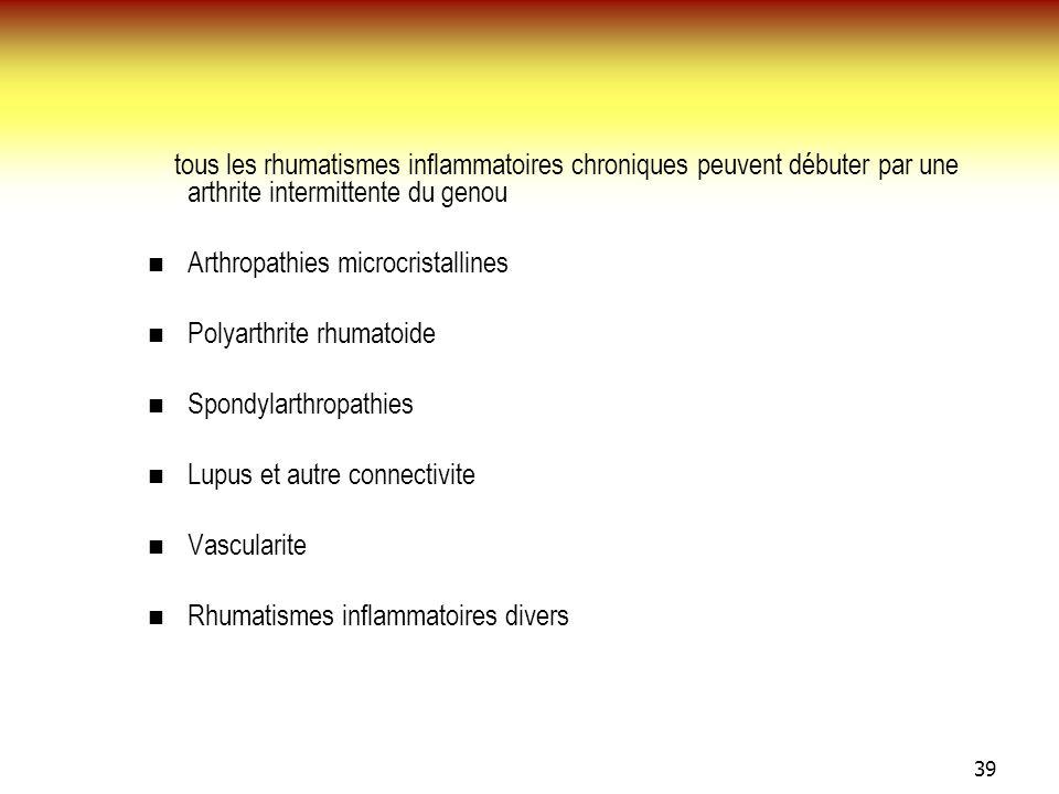 tous les rhumatismes inflammatoires chroniques peuvent débuter par une arthrite intermittente du genou