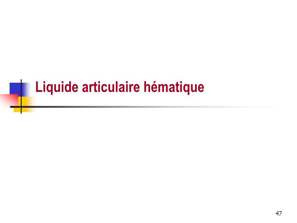 Liquide articulaire hématique