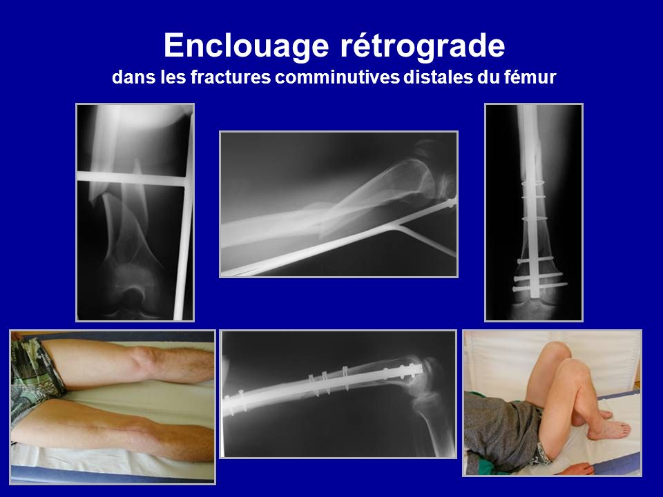 Enclouage rétrograde dans les fractures comminutives distales du fémur