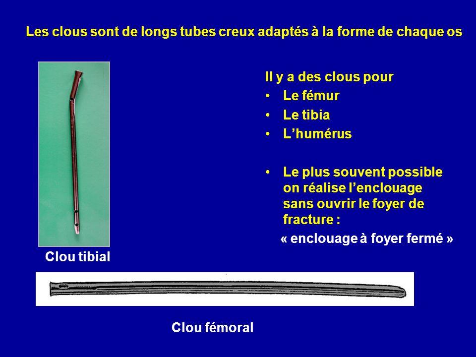 Les clous sont de longs tubes creux adaptés à la forme de chaque os