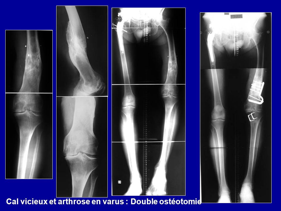 Cal vicieux et arthrose en varus : Double ostéotomie