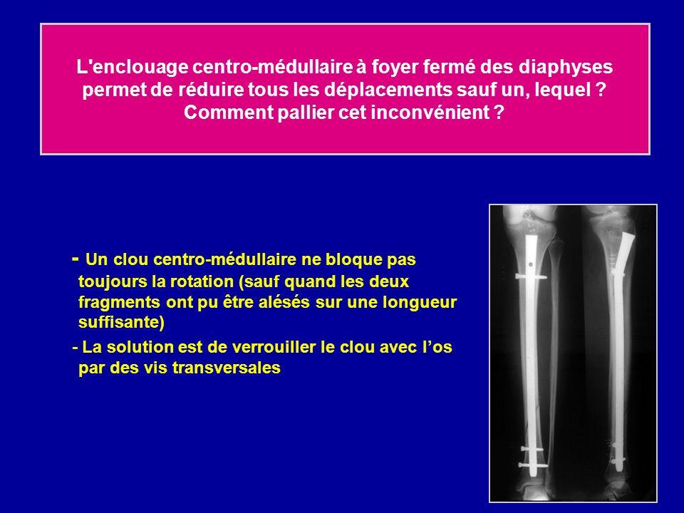 L enclouage centro-médullaire à foyer fermé des diaphyses permet de réduire tous les déplacements sauf un, lequel Comment pallier cet inconvénient