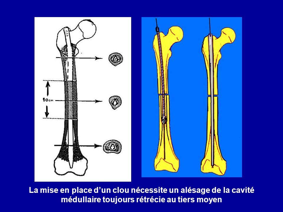 La mise en place d'un clou nécessite un alésage de la cavité médullaire toujours rétrécie au tiers moyen