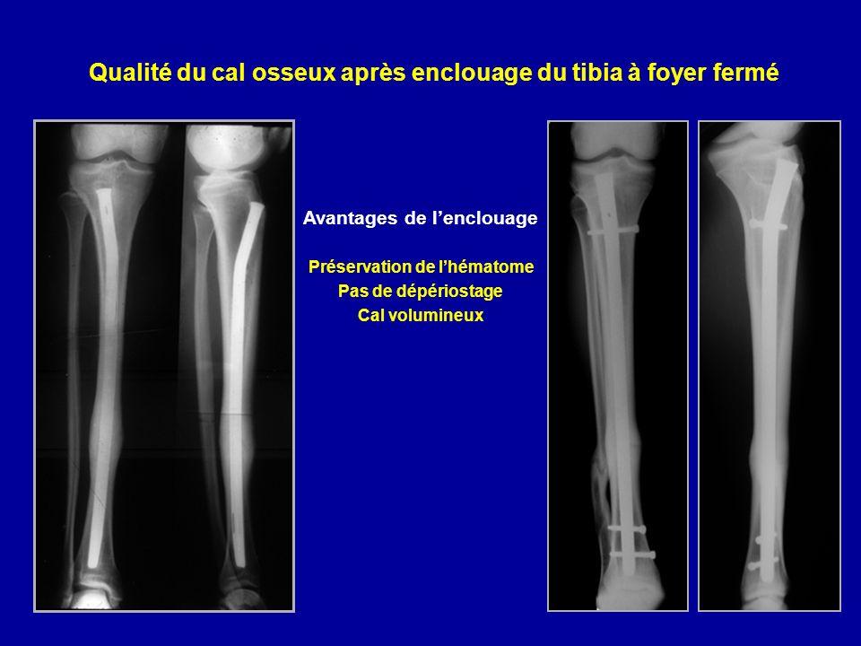 Qualité du cal osseux après enclouage du tibia à foyer fermé