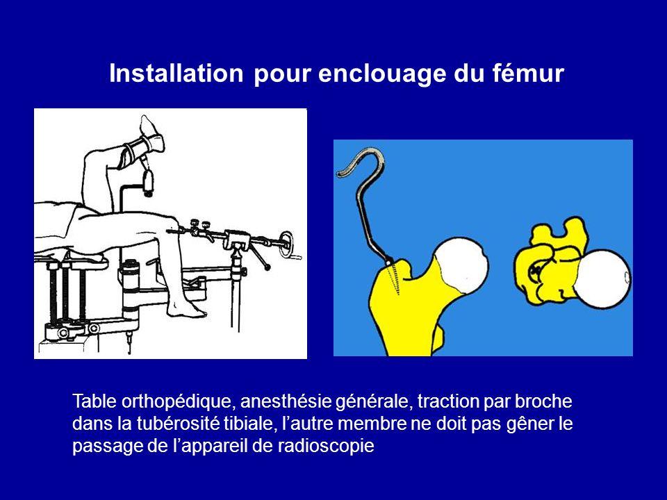 Installation pour enclouage du fémur