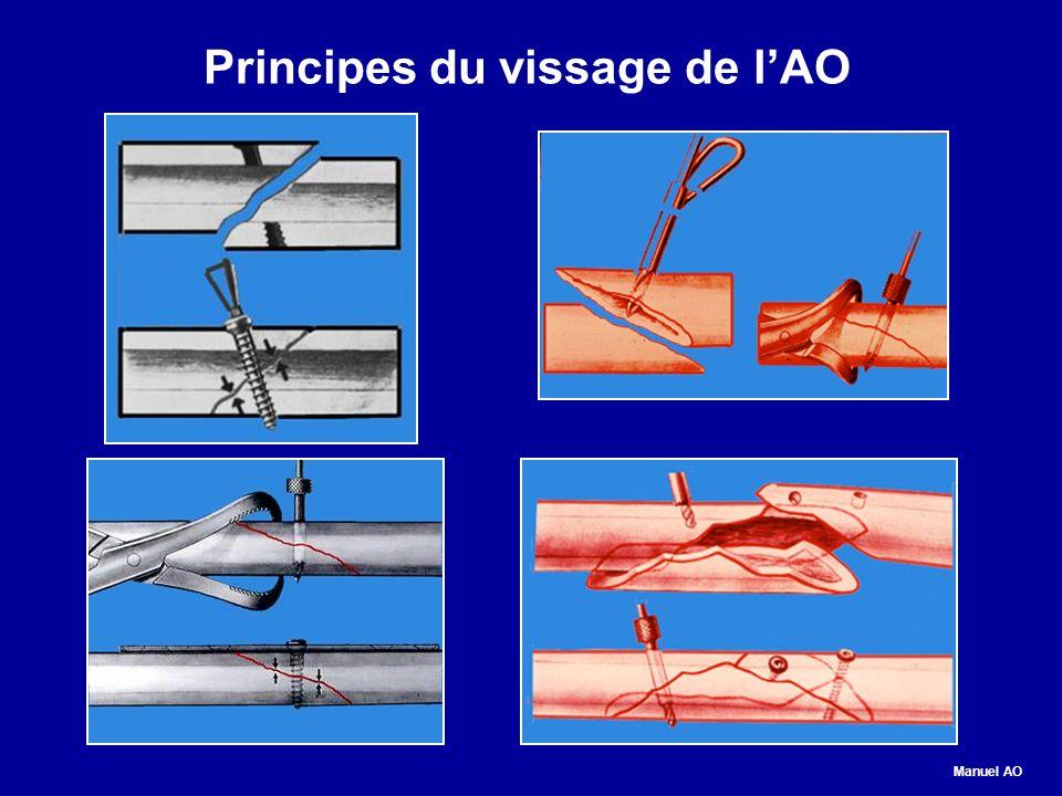 Principes du vissage de l'AO