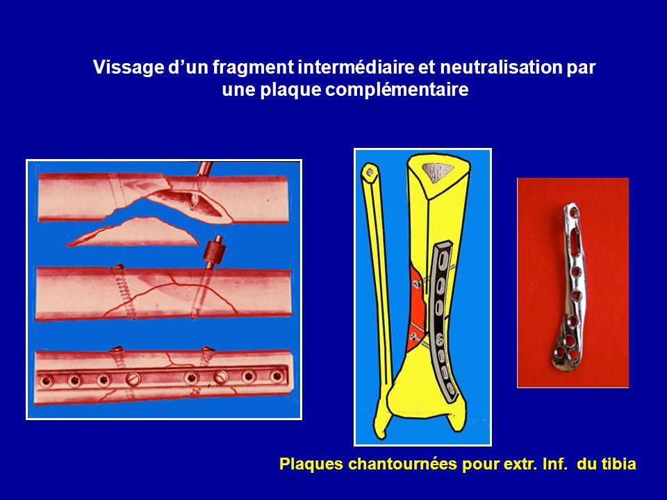 Vissage d'un fragment intermédiaire et neutralisation par une plaque complémentaire