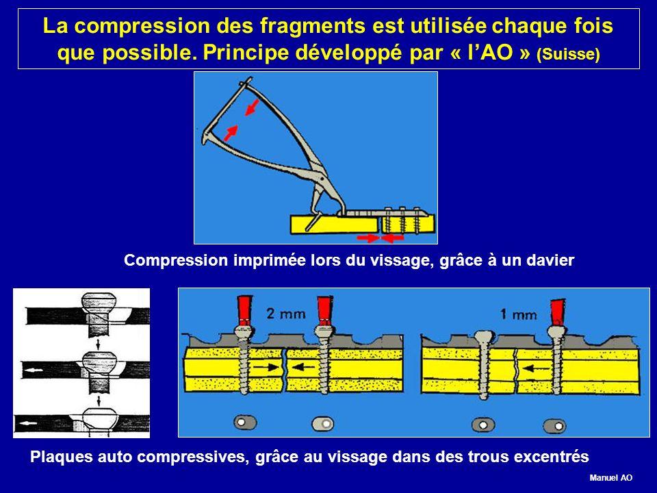 Compression imprimée lors du vissage, grâce à un davier