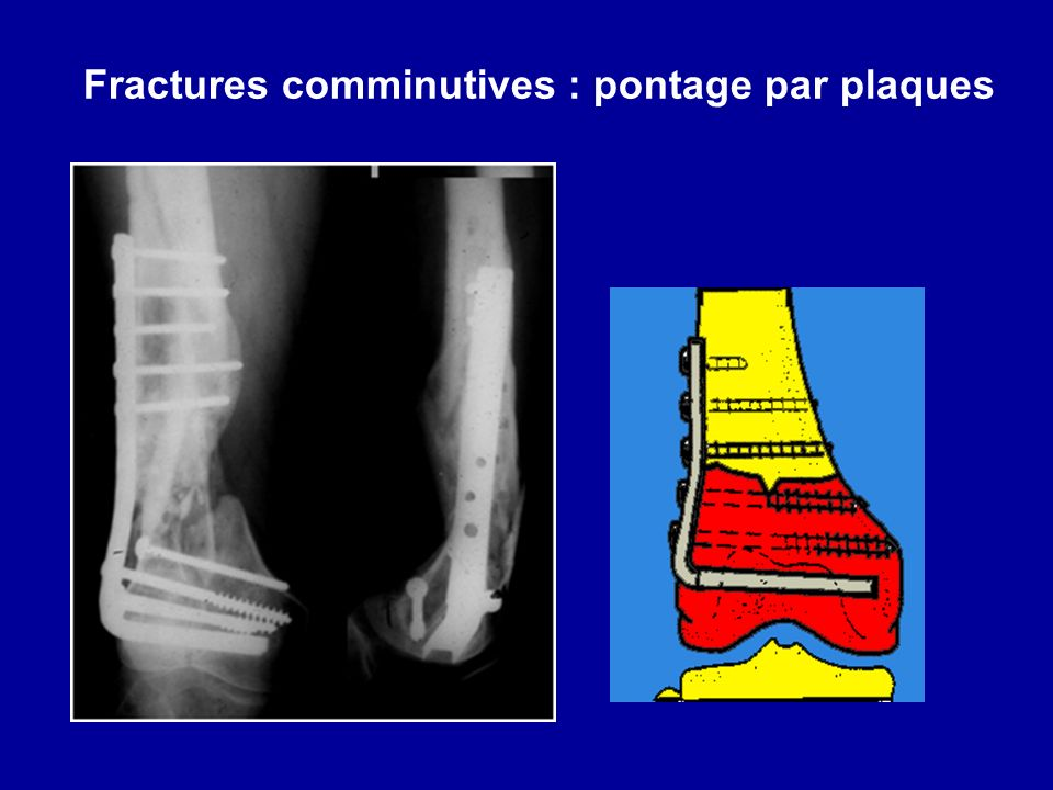 Fractures comminutives : pontage par plaques