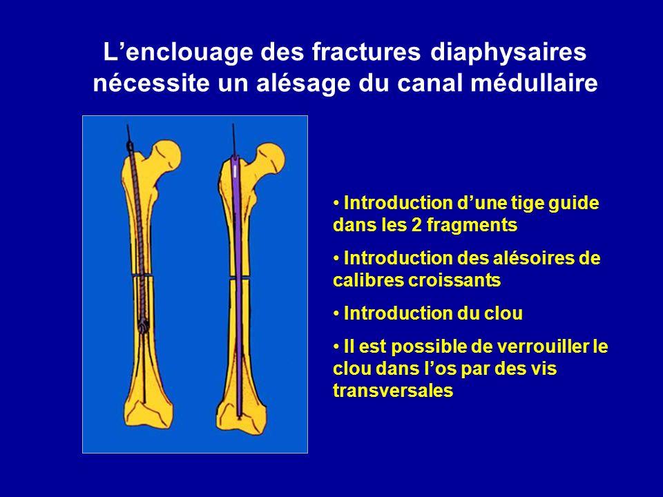 L'enclouage des fractures diaphysaires nécessite un alésage du canal médullaire