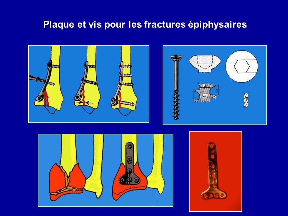 Plaque et vis pour les fractures épiphysaires