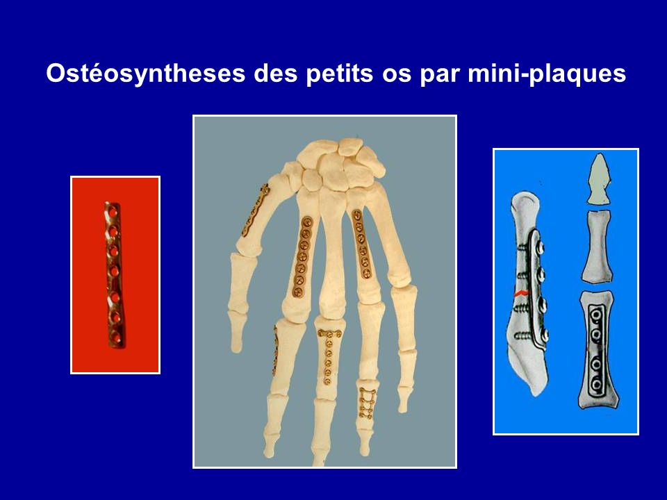 Ostéosyntheses des petits os par mini-plaques