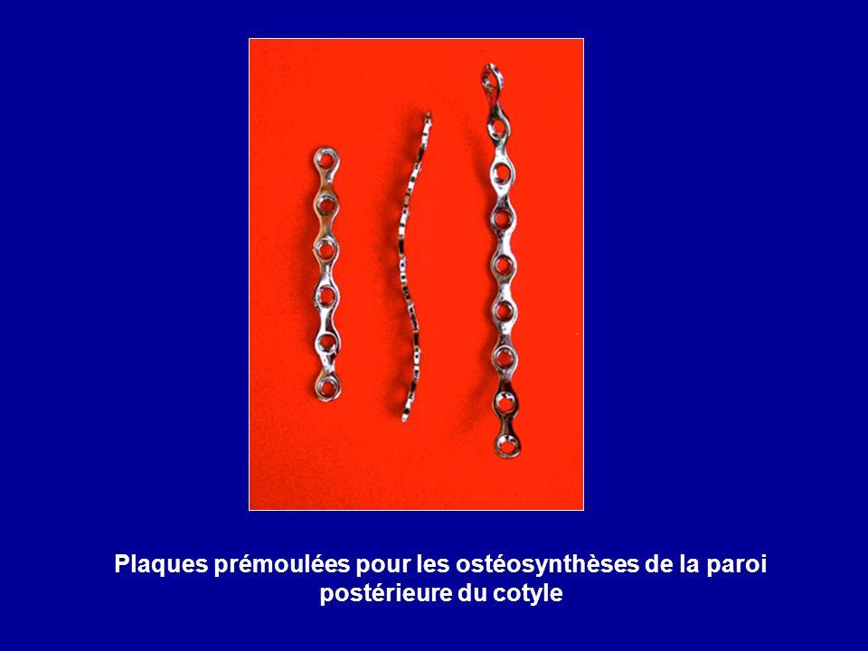 Plaques prémoulées pour les ostéosynthèses de la paroi postérieure du cotyle