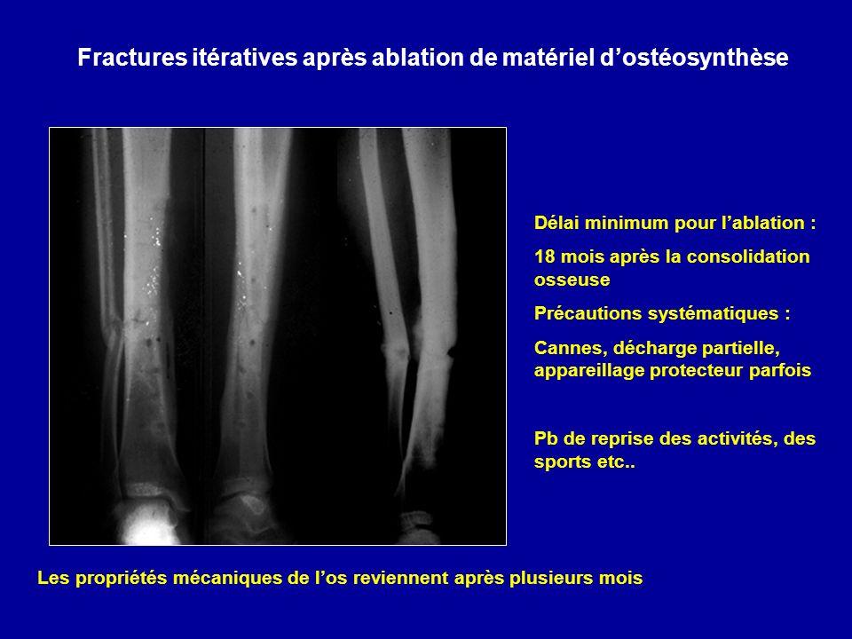 Fractures itératives après ablation de matériel d'ostéosynthèse