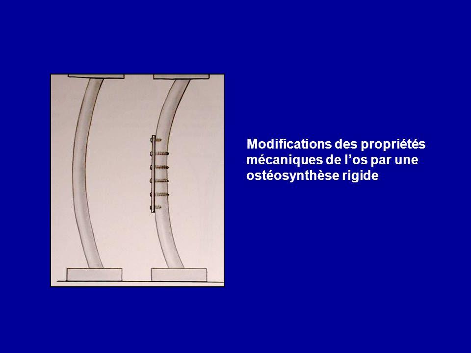 Modifications des propriétés mécaniques de l'os par une ostéosynthèse rigide