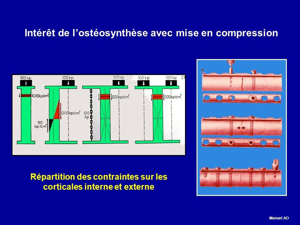 Intérêt de l'ostéosynthèse avec mise en compression