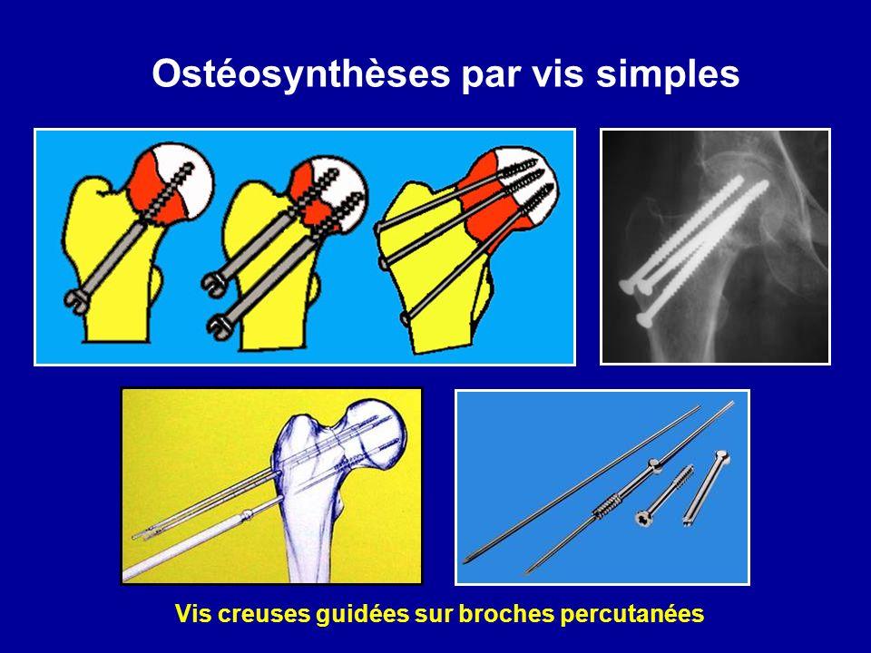 Ostéosynthèses par vis simples