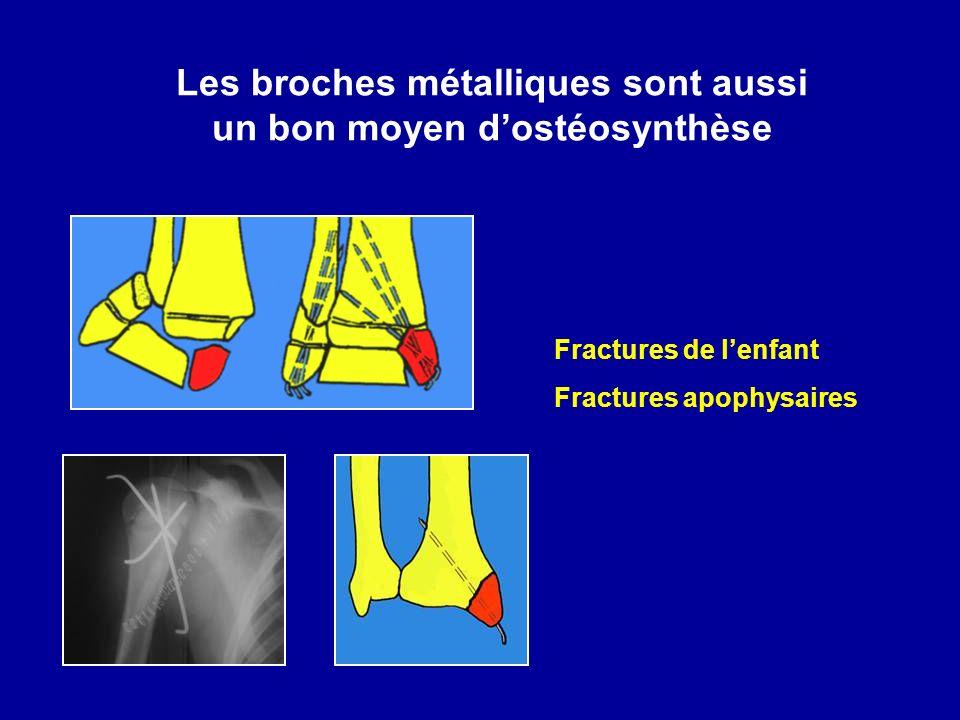 Les broches métalliques sont aussi un bon moyen d'ostéosynthèse