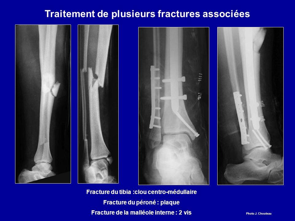 Traitement de plusieurs fractures associées