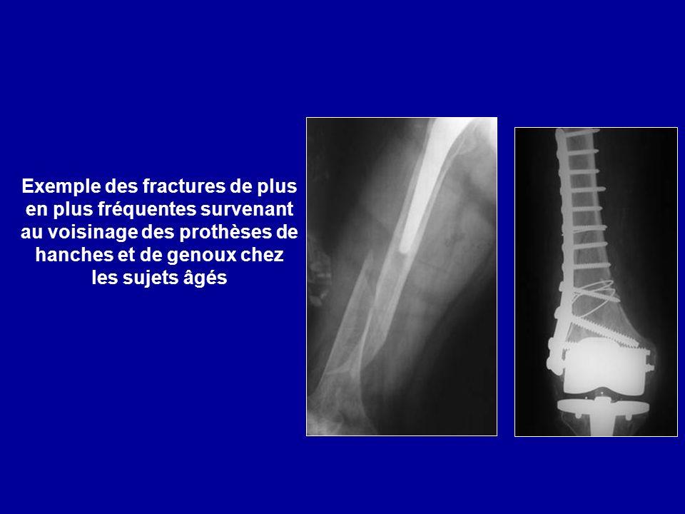 Exemple des fractures de plus en plus fréquentes survenant au voisinage des prothèses de hanches et de genoux chez les sujets âgés