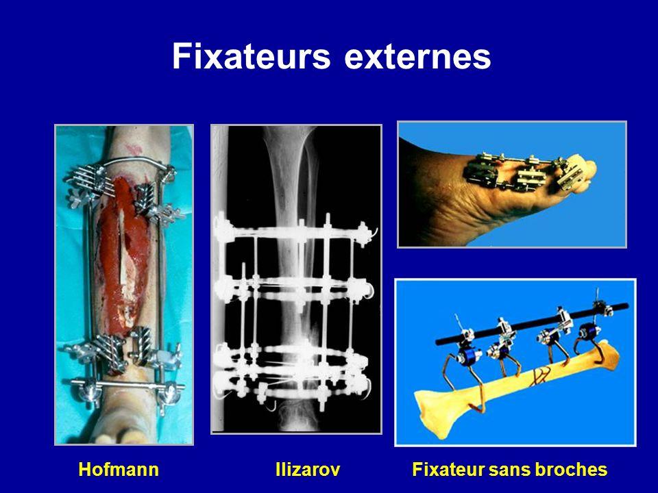 Fixateurs externes Hofmann Ilizarov Fixateur sans broches
