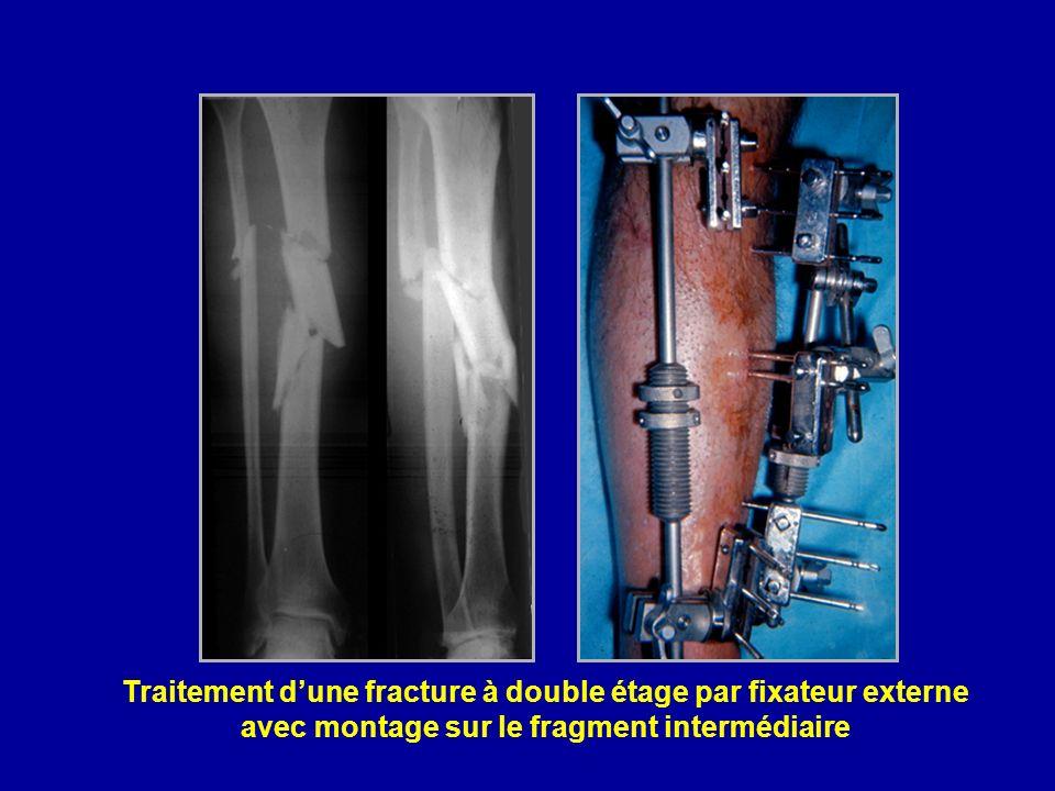 Traitement d'une fracture à double étage par fixateur externe avec montage sur le fragment intermédiaire