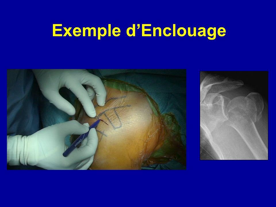 Exemple d'Enclouage