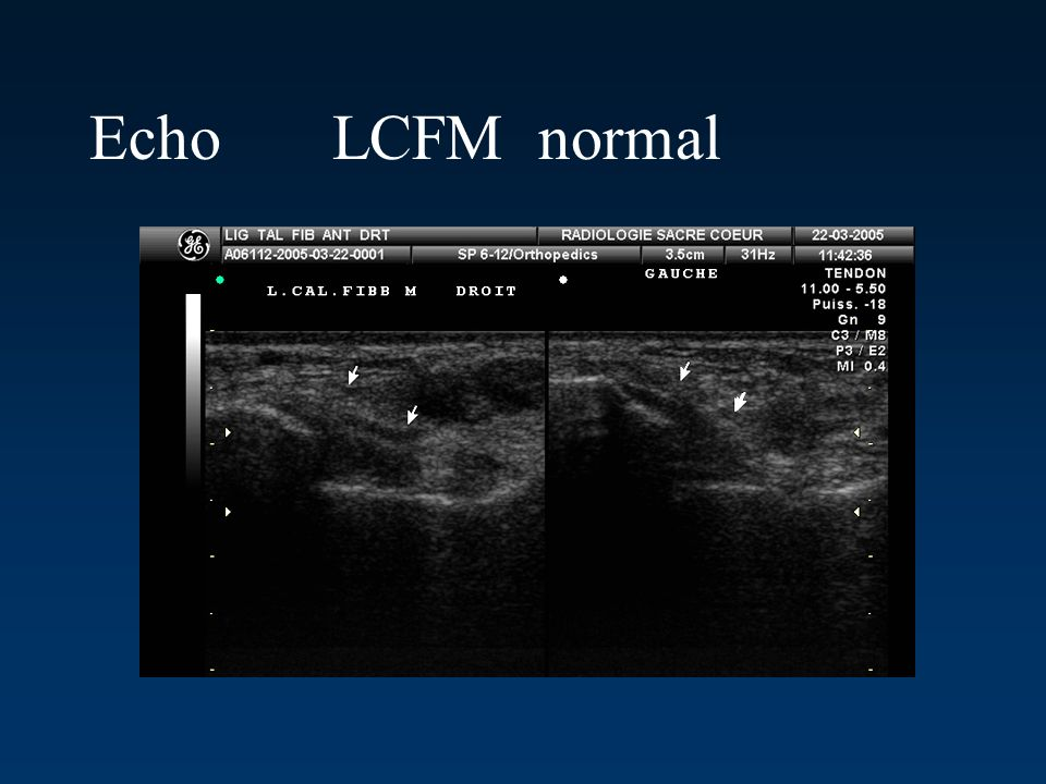 Echo LCFM normal