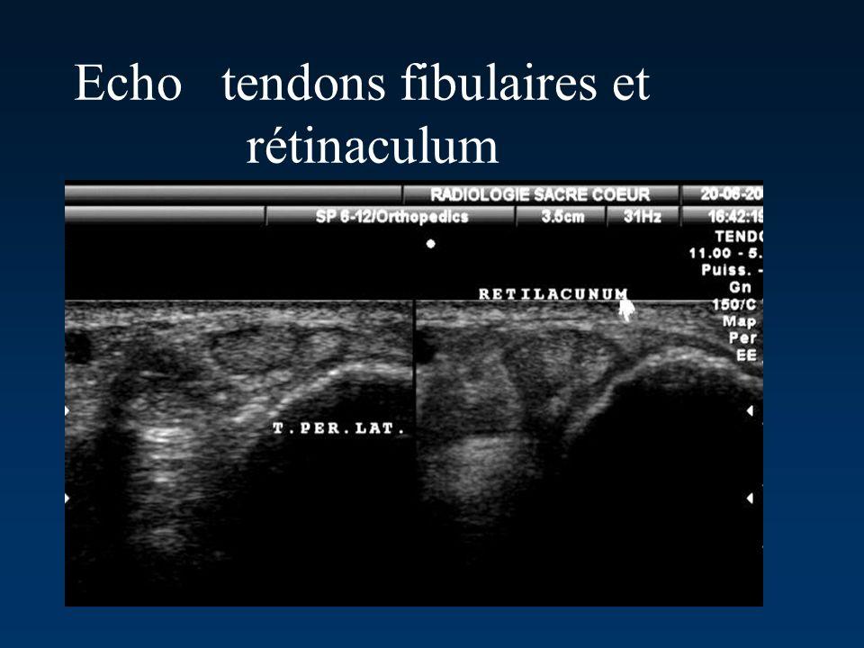 Echo tendons fibulaires et rétinaculum