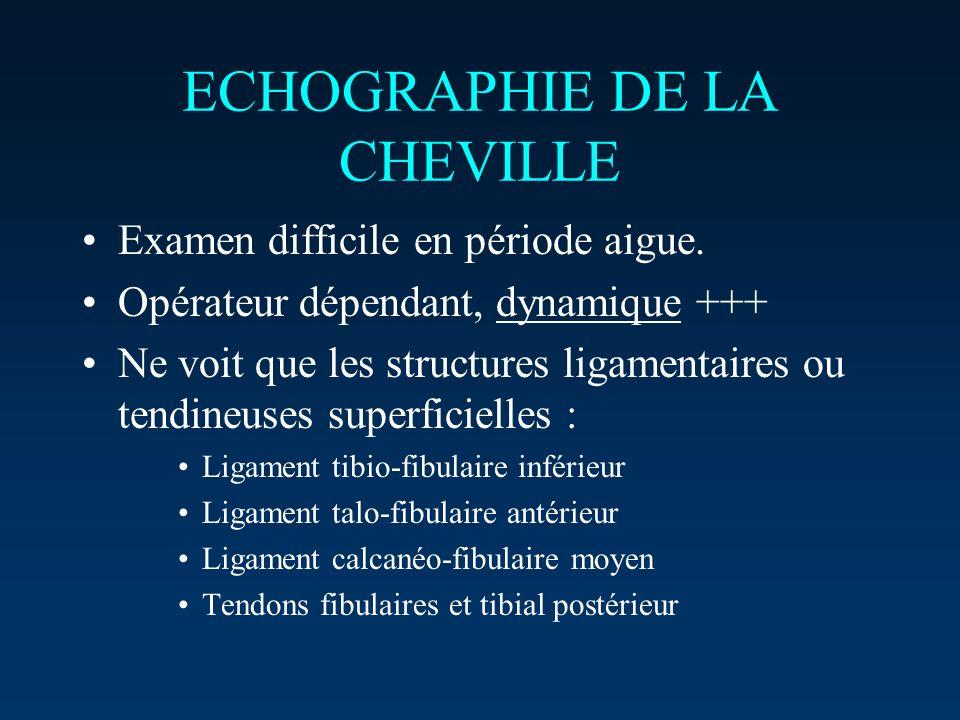 ECHOGRAPHIE DE LA CHEVILLE