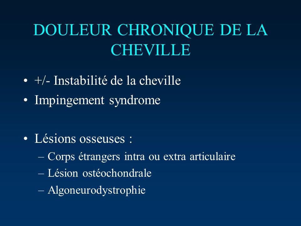 DOULEUR CHRONIQUE DE LA CHEVILLE