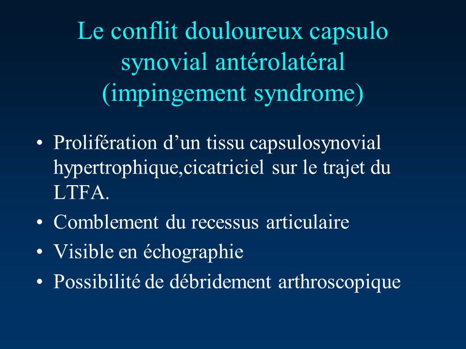 Le conflit douloureux capsulo synovial antérolatéral (impingement syndrome)