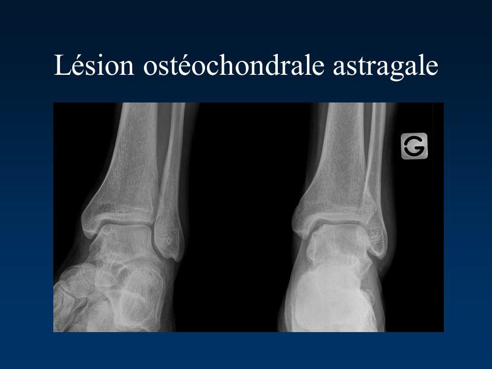 Lésion ostéochondrale astragale