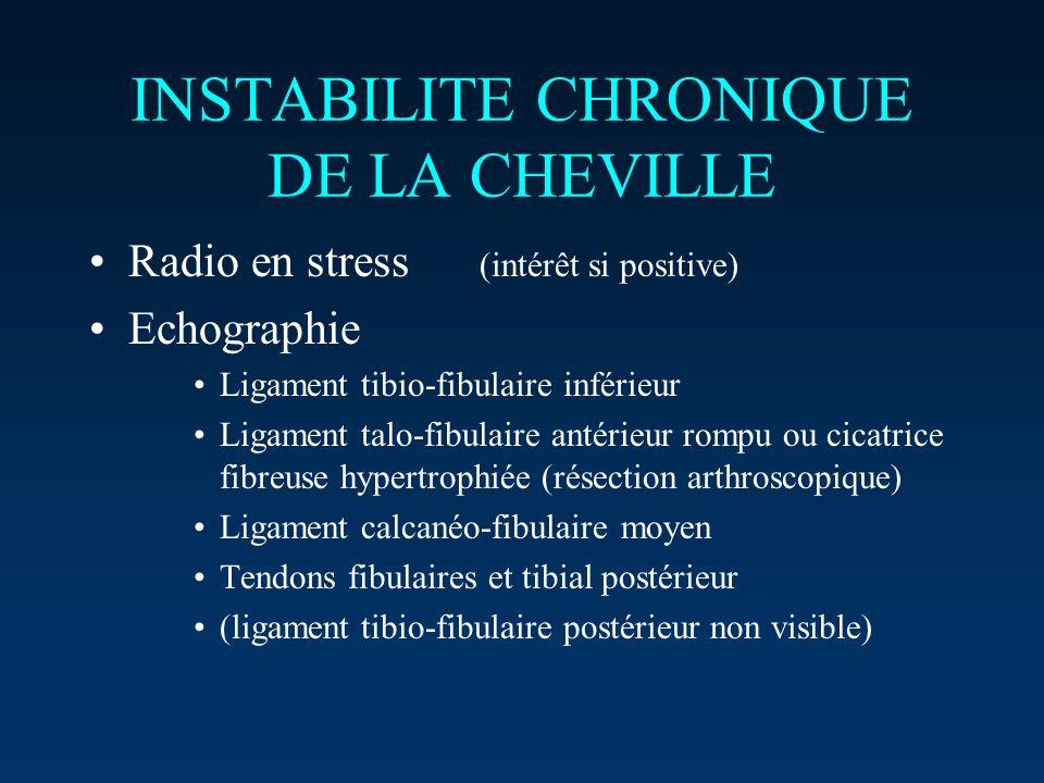 INSTABILITE CHRONIQUE DE LA CHEVILLE