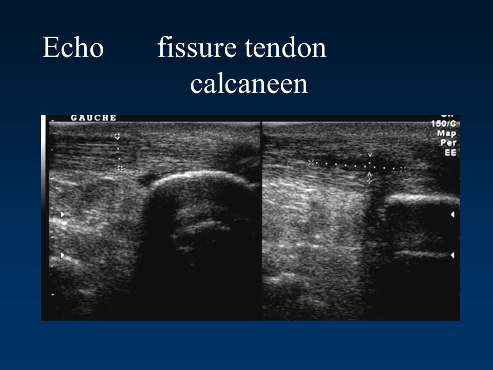 Echo fissure tendon calcaneen