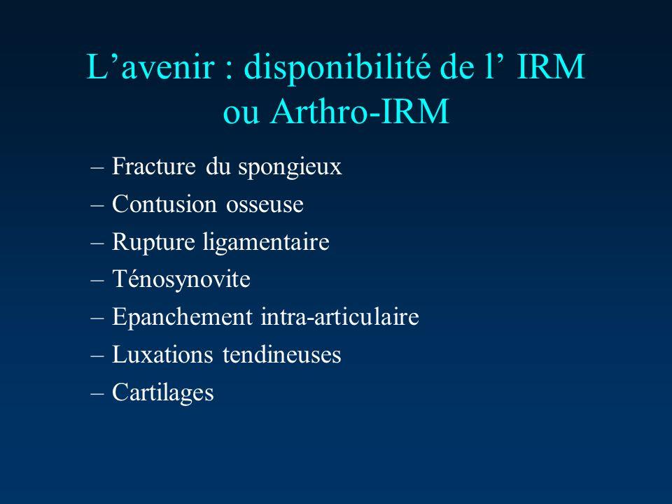 L'avenir : disponibilité de l' IRM ou Arthro-IRM