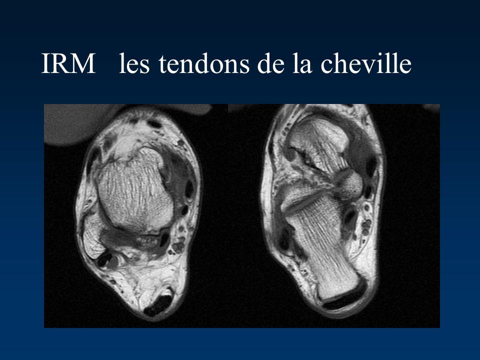 IRM les tendons de la cheville
