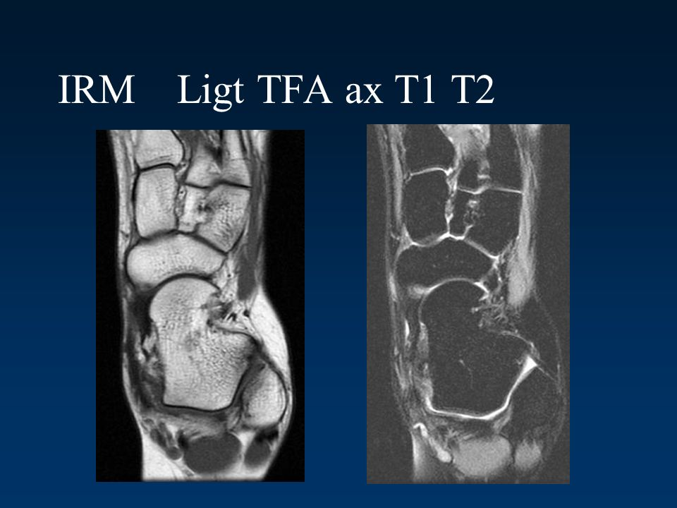 IRM Ligt TFA ax T1 T2