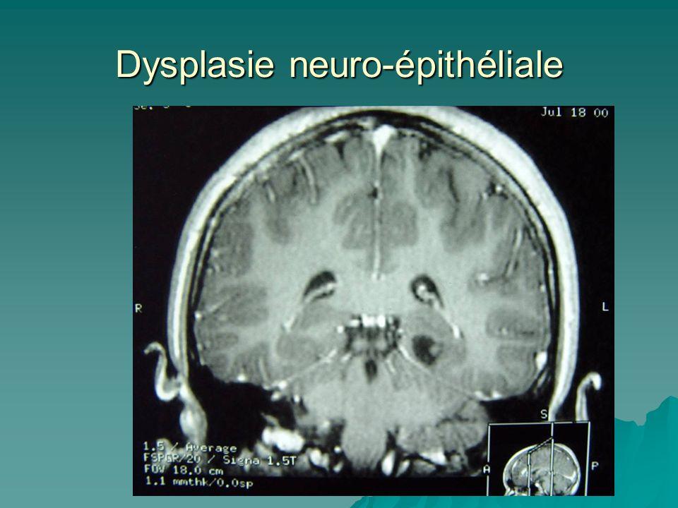 Dysplasie neuro-épithéliale