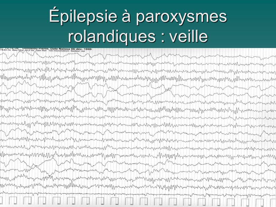 Épilepsie à paroxysmes rolandiques : veille